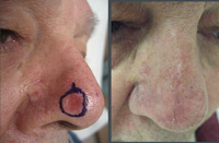 This is a biopsy proven basal cell cancer, which was excised using the Mohs micrographic surgical technique.<br />