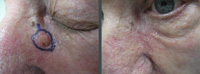 Las Vegas Dermatology patient with Basal cell cancer marked prior to Mohs micrographic surgery. <br />